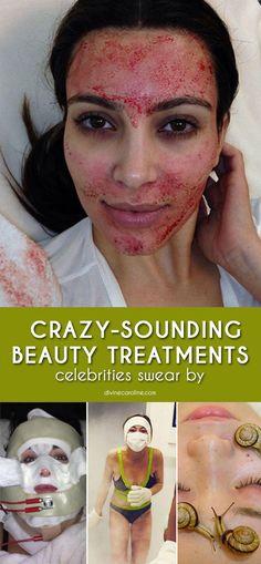 15 Of The Craziest Beauty Treatments Celebs Swear By