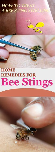 Wondrous 13 Best Bee And Wasp Stings Images In 2017 Bee Wasp Interior Design Ideas Tzicisoteloinfo