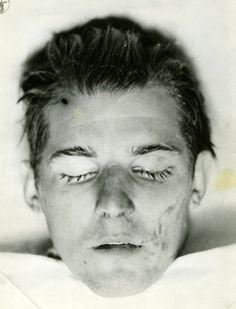 Severed head of a Cleveland Torso Murder's victim. He was never identified, even though thousands viewed the head and later, a death mask made from it.