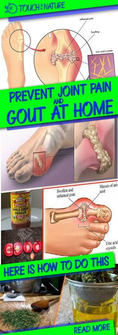 The uric acid crystals make kidney damages, arthritis, joint ache and gout. This additionally triggers the joint ache if this isn't dealt with by medical doctors. This ache turns into continual and if not handled, can unfold extra. Thus, you get joint irritation and arthritis. The gout is a metabolic dysfunction attributable to extra uric …