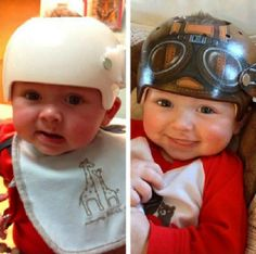 Artist paints medical helmets for babies so they look cooler http://ift.tt/2gd3tfO