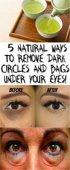5 NATURAL WAYS TO REMOVE DARK CIRCLES AND BAGS UNDER YOUR EYES!