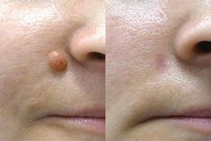 Best and effective way to remove skin tags, Moles and Watts naturally in less than Six Hours. Best Way To Remove Skin Tags. Skin tags can be embarrassing Skin Tags What Causes, What Are Skin Tags, Oil For Dry Skin, Dry Skin On Face, Skin Serum, Moisturizer For Dry Skin, Skin Tag Removal Cream, Skin Tag Treatment, Remove Skin Tags Naturally