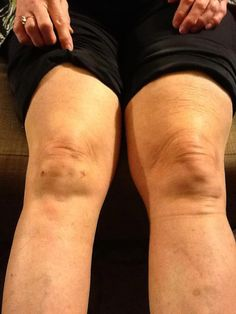 Nu Skin Body Spa and ageLOC results on one leg in 15 minutes. Get ready for…