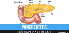 5 Pancreatitis Nursing Care Plans