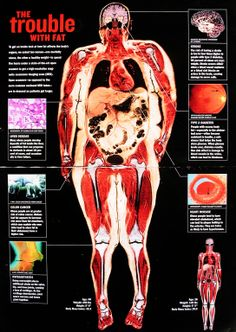 Trouble With Fat Full-body medical scan reveals health complications due to being over-weight (obesity).Full-body medical scan reveals health complications due to being over-weight (obesity). Fitness Motivation, Weight Loss Motivation, Weight Loss Tips, Health And Beauty, Health And Wellness, Health Tips, Health Fitness, Health Facts, Health Zone