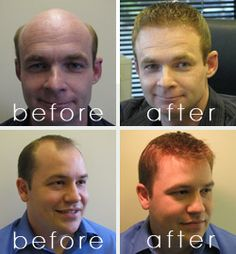 Balding men and women will try anything possible to them to regrow the hair they've lost. Hair loss is indeed damaging not only to one's image but also to the morale Regrow Hair Naturally, Make Hair Thicker, Natural Hair Loss Treatment, Love Problems, Bald Men, Fuller Hair, Marriage Problems, Prevent Hair Loss, Hair Regrowth