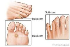 How to get rid of corns? Ways to remove corns naturally. Remedies to get rid of corns. Corn On Toe, Get Rid Of Corns, How To Remove Corns, Coconut Oil For Skin, Feet Care, Natural Treatments, Body Treatments, Vaseline, Beauty Tutorials