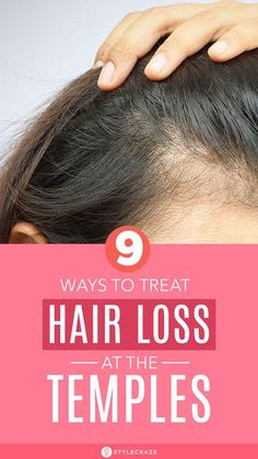 Why Hair Loss, What Causes Hair Loss, Hair Loss Cure, Oil For Hair Loss, Stop Hair Loss, Hair Loss Women, Prevent Hair Loss, Shampoo For Hair Loss, Shampoo For Thinning Hair