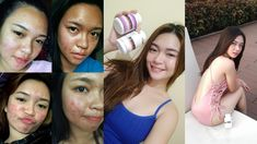 The complete list faqs and guide about how to take luxxe white enhanced glutathione of Frontrow. Discover how many luxxe white capsules per day. Pimple Marks, Pimples, Lighten Dark Spots, Skin Shine, Whitening Soap, Even Skin Tone, Fair Skin, Glowing Skin, Take That