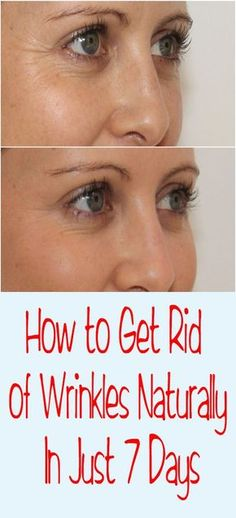 Get Rid of Wrinkles Naturally In Just 7 Days – Let's Tallk
