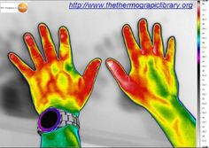 Sommige mensen hebben contrast over bloedvatten in thermografie Some people have more heating contrast in the blood vessels of hands