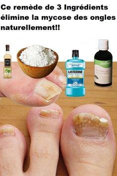 Ce remède de 3 Ingrédients élimine la mycose des ongles naturellement!!