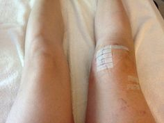 ce5a1be8ed 11 Best Life With A Bum Knee images | Knee surgery, Knee dislocation ...