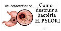 7 Formas De Acabar Naturalmente Com A Bactéria Que Produz Acidez E Dor No Estômago! - Leia e Descubra!