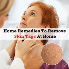 Health Clue: Skin Care