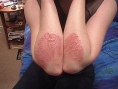 ¿Sufres de inflamaciones recurrentes de la piel? ¿Crees que puedas sufrir de psoriasis? En este artículo, te contamos algo que podría ayudarte a curarte.
