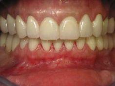 Le cabinet dentaire est spécialisé dans la dentisterie esthétique, la reconstruction dentaire de dents usées, tachées ou mal alignées à l'aide de jaquette ou facette.