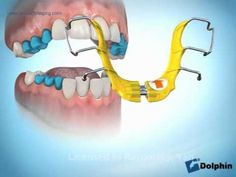 how to clean removable palatal expander