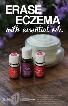 Eczema balm to help soothe dry skin with essential oils. Lots of other great recipes on this blog!