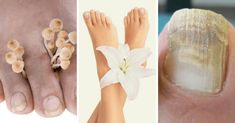 Natural Health Remedies, Feet Care, Health And Wellness, Blog, Internet, Pergola, Victoria, Healthy, Fitness