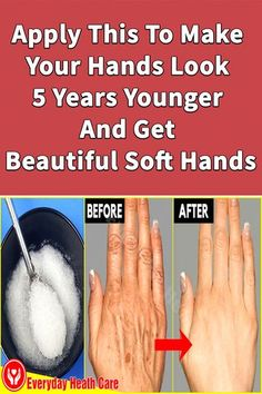 Using this formula will help you remove wrinkles on your hands effectively. You will soon have smooth, soft hands. #howtoremovewrinkles #howtogetridofhandwrinkles #everydayhealthcare #handwrinkles #wrinklesonhand #handswrinkled #handwrinkleshomeremedy #removewrinklesfromhand #getridofhandwrinkles #homeremedyforwrinkledhands #howtoremovehandwrinkles Natural Lip Plumper, Natural Lips, How To Get Rid, How To Remove, How To Apply, Beauty Tips For Glowing Skin, Beauty Skin, Home Remedies For Wrinkles, Heath Care
