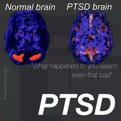 #PTSD #Infographic Of The Day - 07/03/17 > Via: http://PTSDDating.com