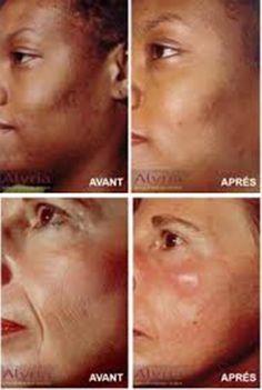 Lacide salicylique pour la personne de la pigmentation