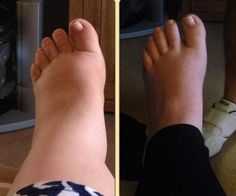 11 photos of pregnancy swelling: How do your feet compare? Compression Socks For Travel, Pregnancy Swelling, Swollen Ankles, Fashion Models, Diabetic Neuropathy, Foot Pain, Varicose Veins, How To Get Rid, Pain Relief