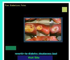 Pies Diabeticos Fotos 195359 - Aprenda como vencer la diabetes y recuperar su salud.