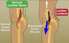 Comparing a normal lumbar spine to lumbar lordosis