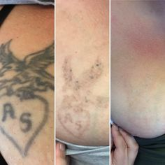 Progress in a breast tattoo removal with the PicoSure laser Laser Tattoo, Anti Aging Facial, Tattoo Removal, Laser Hair Removal, Acne Scars, Freckles, How To Remove, Breast, Tattoos