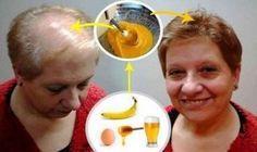 Všetci lekári sú šokovaní týmto neuveriteľným receptom na rast vlasov! Táto žena, naň nedá dopustiť | MegaZdravie.sk