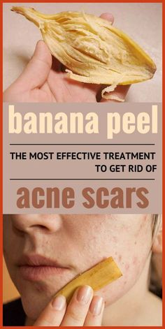 Natural Acne Remedies Banana peel – The most effective treatment to get rid of acne scars. - Banana peel – The most effective treatment to get rid of acne scars. Natural Acne Remedies, Home Remedies For Acne, Scar Remedies, Natural Cures, Homeopathic Remedies, Belleza Diy, Tips Belleza, Scar Treatment, Acne Treatments