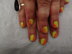 Jessica Custom Nail Colour in Yellow Flame with Pink Explosion accent.