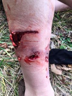 FAYETTEVILLE (KFSM) -- A Fayetteville cyclist was recovering Friday (Feb. after he was attacked by a dog while out on what he called a routine training ride in Washington County. Richard Holt p.