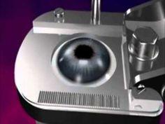 Corrige miopía, hipermetropía y astigmatismo con la mas Alta tecnología Citas al 3336779044 #unidaddeoftalmologia