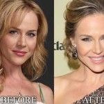 Julie Benz might have had facial fillers injected into her face and Juvederm which was injected into her lips. She might have done breast argumentation. Facial Fillers, Julie Benz, Celebrity Plastic Surgery, Cosmetic Procedures, Celebrity Photos, Skin Care Tips, Beauty Hacks, Celebrities, Lady