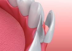 What is a dental veneer? Dental veneers are restorations that cover the outer surface of the front teeth and correct small misalignments, fill up gaps and improve the outlook and brightness of teeth. Dental Implant Surgery, Teeth Implants, Oral Surgery, Veneers Teeth, Dental Veneers, Composite Veneers, Tooth Extraction Aftercare, Porcelain Veneers, Dental Health
