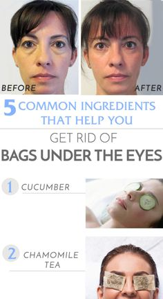 How to get rid of under the eye bags at home