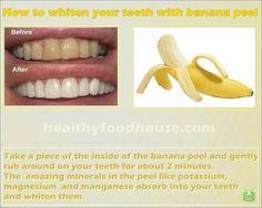 Whiten teeth with banana peel