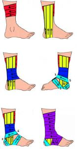 1000+ images about Ankle exercise ( Injury) on Pinterest ...