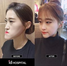 💛What she had💛 🔹Double-Jaw Surgery 🔹V-Line Surgery 🔹Lateral Canthoplasty 🔹Lateral Hotz . V Line Surgery, Nose Surgery, Korean Plastic Surgery, Celebrity Plastic Surgery, Dental Implant Procedure, Dental Implants, Nose Fillers, Double Jaw Surgery, Orthognathic Surgery