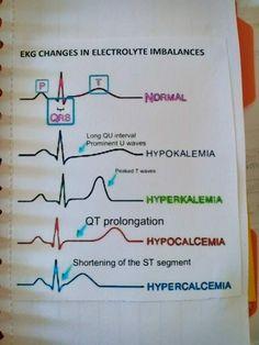 ECG changing in electrolyte imbalances . ECG changing in electrolyte imbalances . Medical Surgical Nursing, Cardiac Nursing, Pharmacology Nursing, Rn School, Medical School, Medical Humor, Medical Assistant, Medical Care, Nursing School Notes