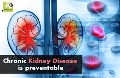 #Chronic #kidney #disease (CKD) can be prevented by controlling underlying #diseases or #factors that contribute to #kidneydisease. If your #CKD is detected early, it can be reveresed using #natural #herbal #treatment.  https://goo.gl/A7vBjJ