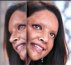 Must see : Deepika Padukone's unrecognizable look as acid attack survivor in Chhapaak Kabir Khan, Romantic Films, The Pipeline, Karan Johar, Magnum Opus, Varun Dhawan, Upcoming Films, Bollywood Actors