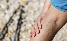 Varicose eczema, or stasis dermatitis: Symptoms, causes, and treatment Varicose Vein Remedy, Varicose Veins Treatment, Urinary Incontinence, Peripheral Neuropathy, Varicose Veins During Pregnancy, Radiofrequency Ablation, Spider Vein Treatment, Lunge, Get Skinny