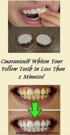 Whiten your teeth in less than 2 minutes!!! Guaranteed – Ever Well Women