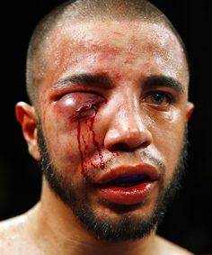 *Formato = Cuadrado *Plano = Acercamiento *Concepto = Tipo de lesión que ocurren en el boxeo *Angulo = Frontal creditos a bop.nppa.org