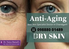 Dr. Naiya skin and laser clinic is allocated Opposite to Kisan Mandi Ground, SCO 325, 1st floor, sec 40, Chandigarh. Dr. Naiya is an MBBS of DNB – Dermatology and Venereology with an experience over 10 years. She deals with damaged skin. They work to improve the appearance of the person rather the treat the problem. This clinic is one stop for all diseases. They deal with problem related to skin, hairs and nails with the help of laser and hair transplant technologies. Skin Specialist Doctor, Permanent Laser Hair Removal, Laser Clinics, Skin Clinic, Doctor In, Hair Transplant, Chandigarh, Good Skin, 10 Years